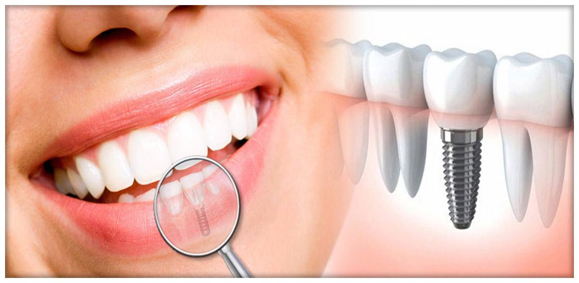 Impianto dentale in Tunisia o Turchia costo e prezzi in Tunisia Turchia Prezzo