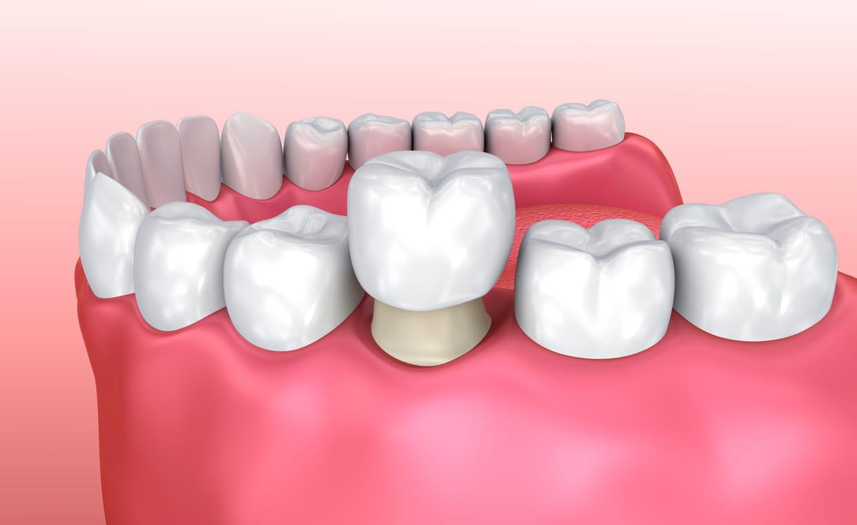 Corona dentale in Tunisia o Turchia costo e prezzi in Tunisia Turchia Prezzo