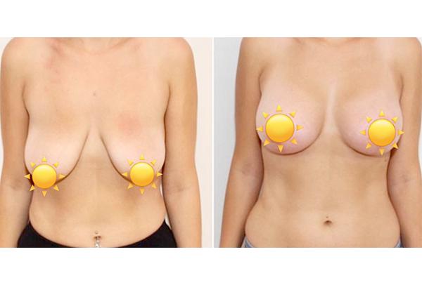 Lifting del seno con protesi Tunisia o Turchia prezzi in Tunisia Turchia Prezzo